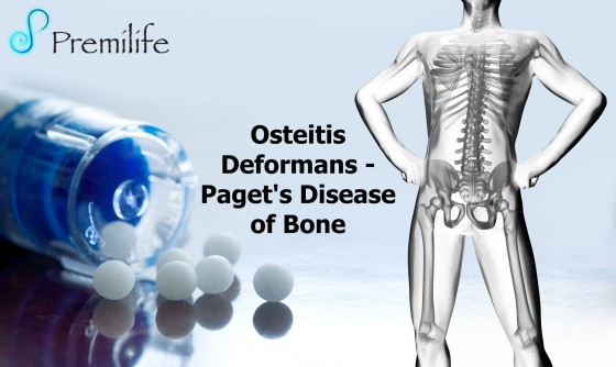 Osteitis-Deformans---Paget's-Disease-of-Bone