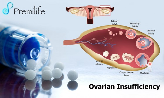 Ovarian-Insufficiency