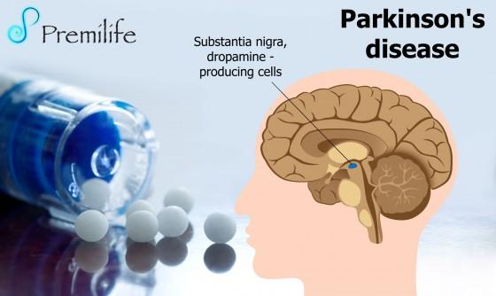 Parkinson's-disease