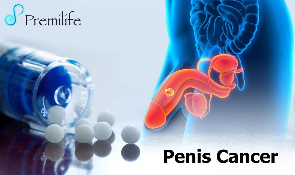 male penile cancer essay