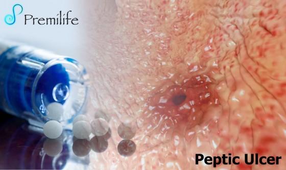 Peptic-Ulcer