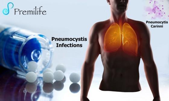 Pneumocystis-Infections