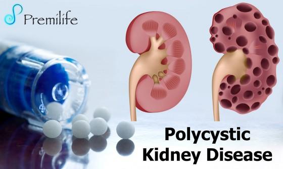 Polycystic-Kidney-Disease