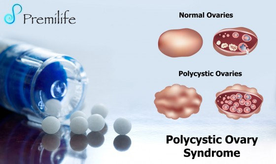 Polycystic-Ovary-Syndrome