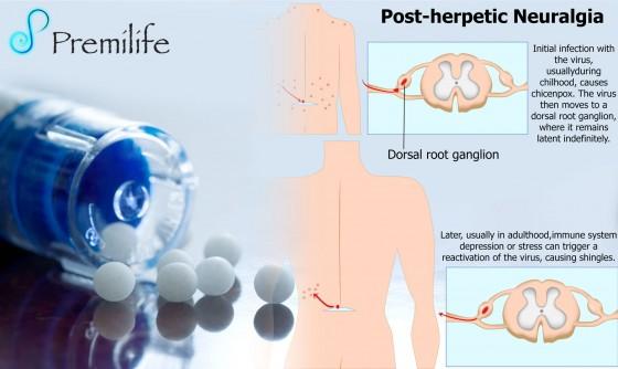 Post-herpetic-Neuralgia