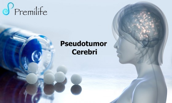 Pseudotumor-Cerebri