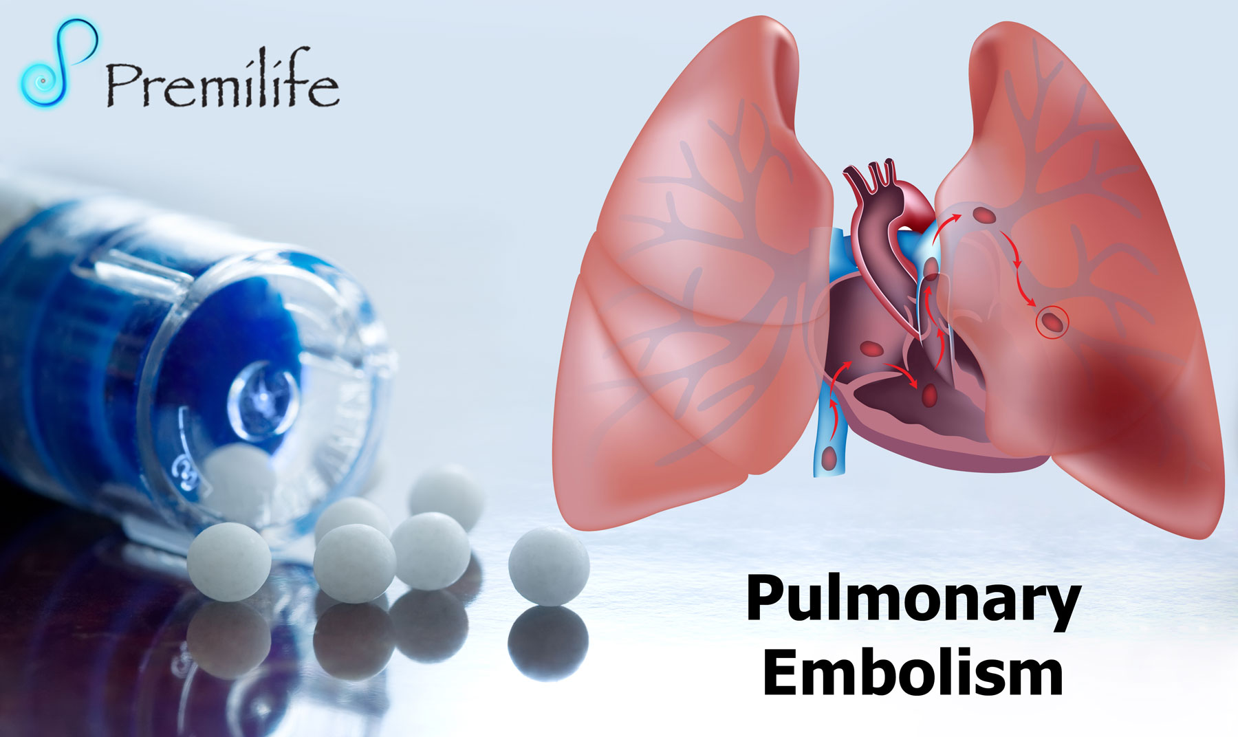 pulmenary embolism Detecting pulmonary embolism in adults is difficult, but discerning it in children is quite another challenge all together.