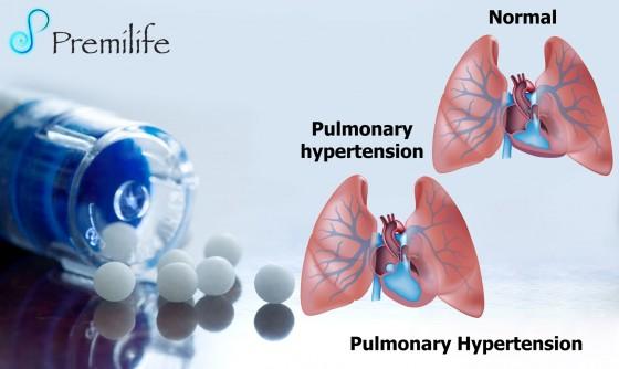 Pulmonary-Hypertension