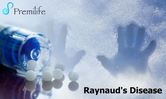Raynaud's-Disease