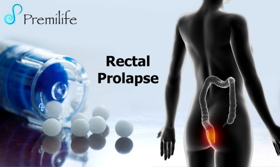 Rectal-Prolapse