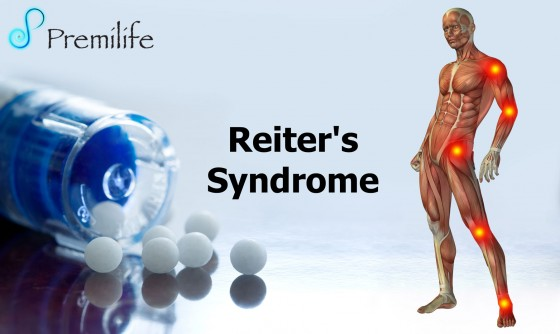 Reiter's-Syndrome