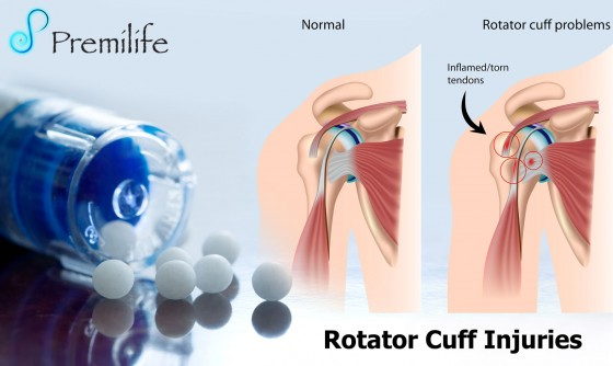 Rotator-Cuff-Injuries