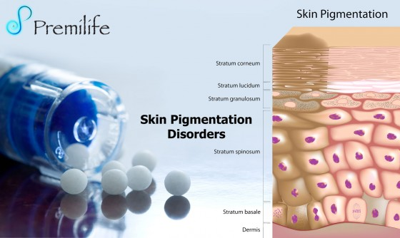 Skin-Pigmentation-Disorders