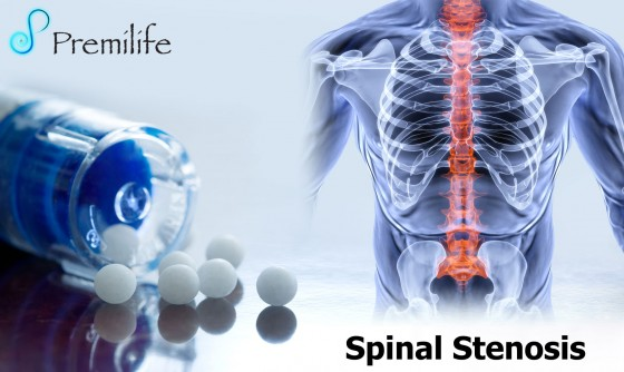 Spinal-Stenosis