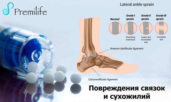 Sprains-and-Strains-russian