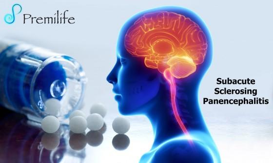 Subacute-Sclerosing-Panencephalitis
