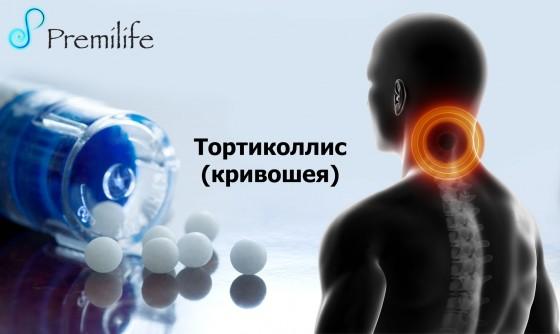 Torticollis-russian