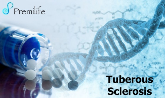 Tuberous-Sclerosis