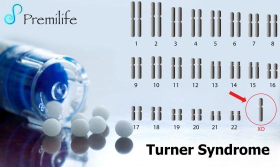 Turner-Syndrome