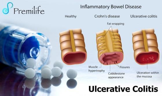 Ulcerative-Colitis
