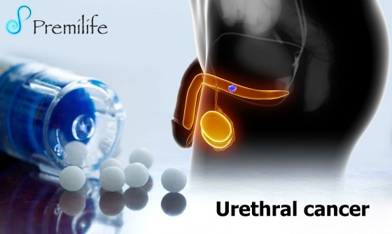 Urethral-cancer