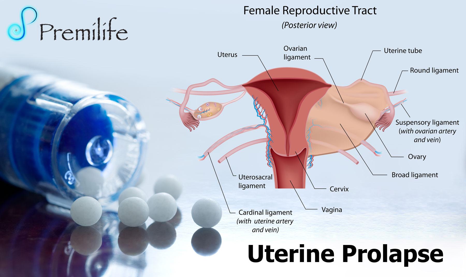 Uterine Prolapse - Premilife