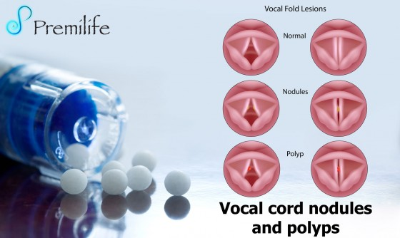 Vocal-cord-nodules-and-polyps