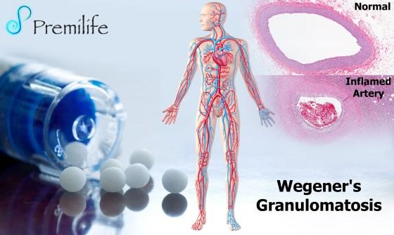 Wegener's-Granulomatosis