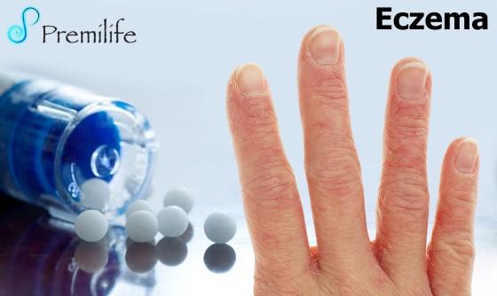 eczema-spanish