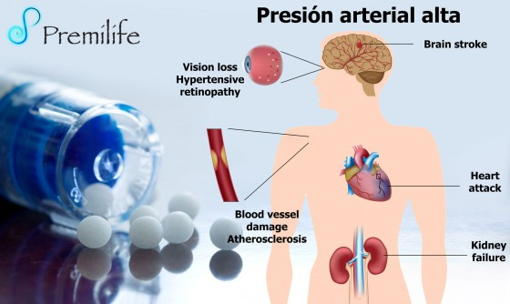 hypertension-spanish