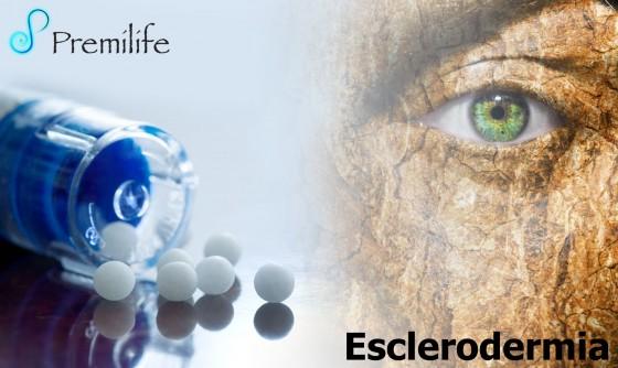 scleroderma-spanish