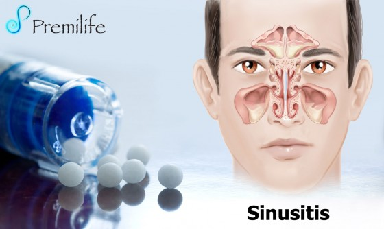 sinusitis-spanish