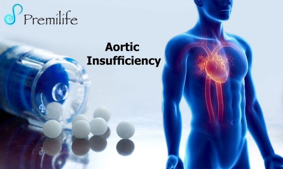 Aortic-Insufficiency