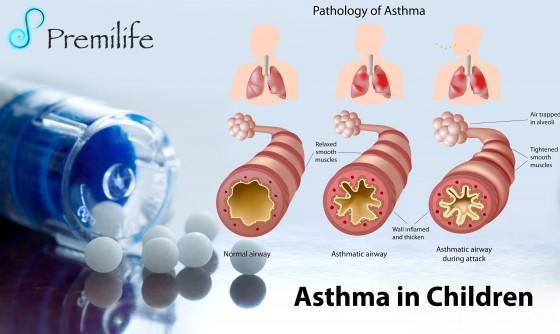 Asthma-in-Children