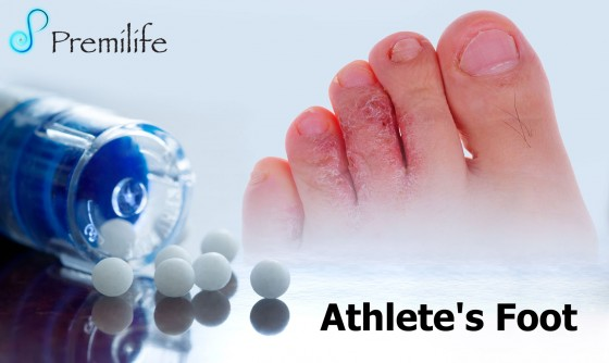 Athlete's-Foot