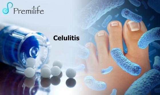 Cellulitis-spanish