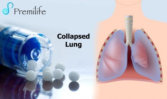 Collapsed-Lung