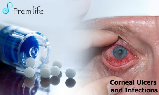 Corneal-Ulcers-and-Infections