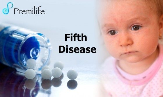 Fifth-Disease