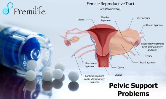Pelvic-Support-Problems