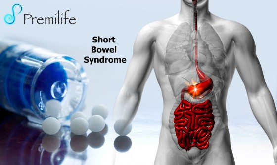 Short-Bowel-Syndrome