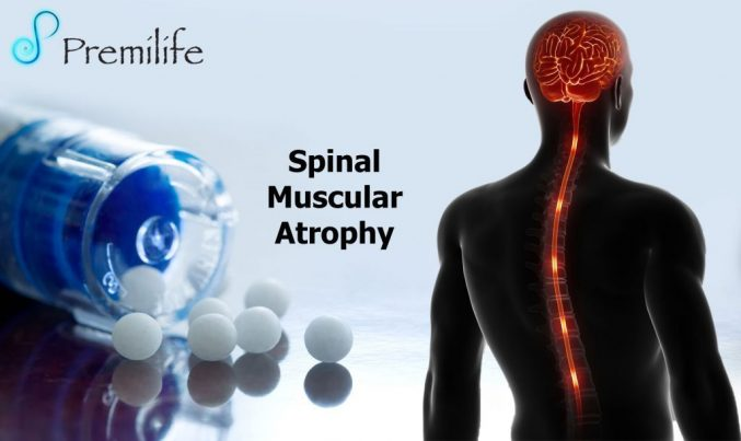 spinal muscular atrophy research paper All research related to spinal muscular atrophy the maternal love and care provide strength to her what is the prognosis in the research of potentially or really usable/effective gene therapy or drug discovery.