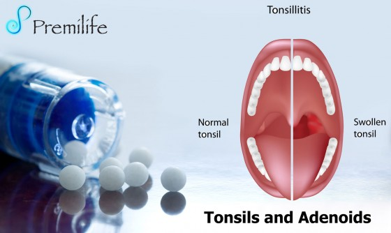 Tonsils-and-Adenoids