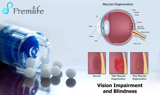 Vision-Impairment-and-Blindness