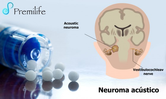 acoustic-neuroma-spanish
