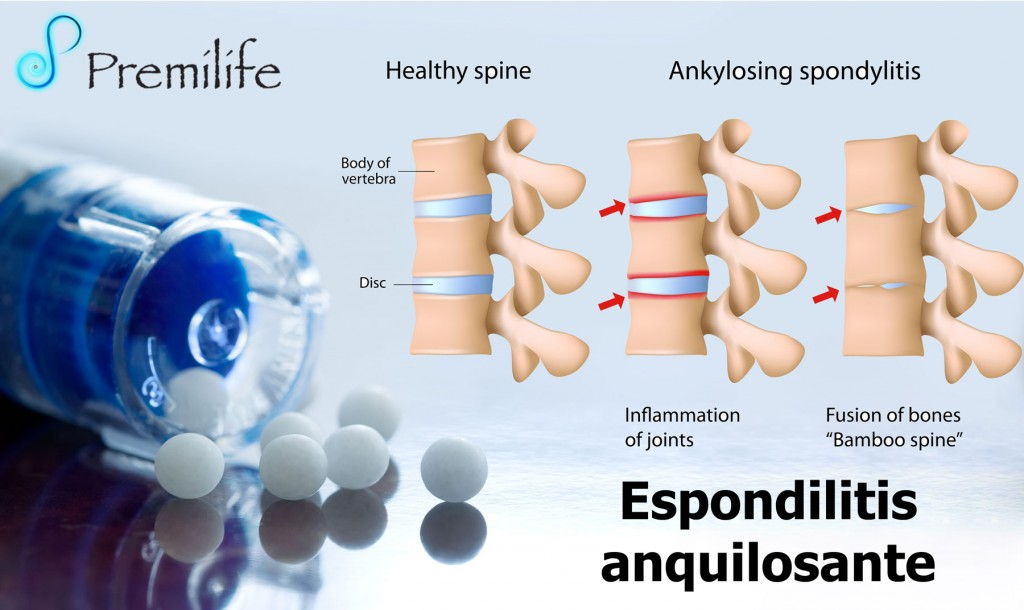 ankylosing spondylitis thesis General comments ankylosing spondylitis is associated with enthesitis at multiple sites it is the commonest inflammatory polyenthesitis of the spine.