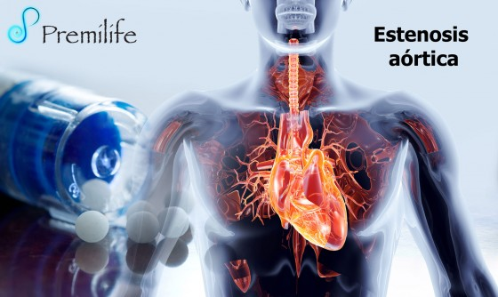 aortic-valve-stenosis-spanish