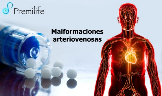 arteriovenous-malformations-spanish