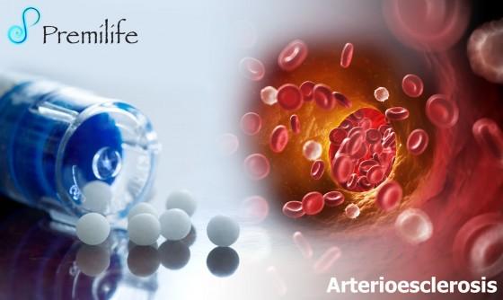atherosclerosis-spanish