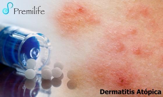atopic-dermatitis-spanish